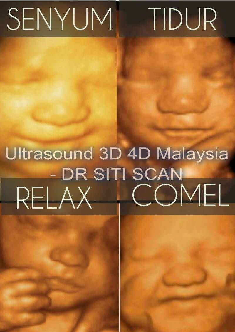 4d dr siti scan