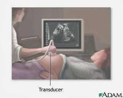 ultrasound-in-pregnancy - Copy - Copy